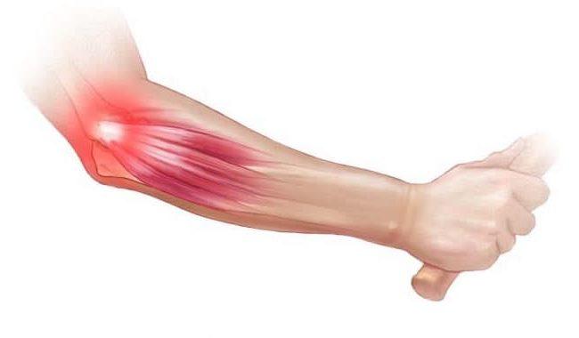 Övningar Padelarmbåge – så Tar du Hand om din Armbåge